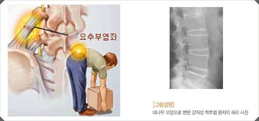 [허리디스크] 요추부 염좌와 강직성 척추염으로 인한 요통
